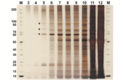SDS-PAGE gel from 10 consecutive fractions of an AAV purification