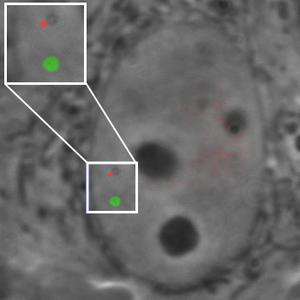 Cell image fluorescent chromosomal loci
