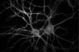 IF image of hippocampal rat neurons