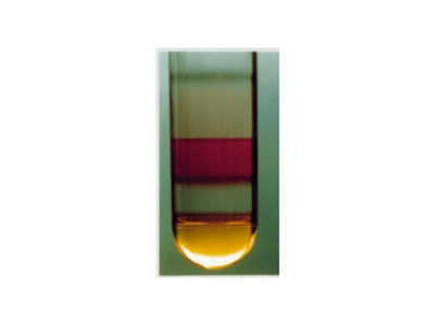 iodixanol gradient before centrifugation
