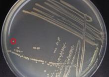 Streak Bacterial Plate Photo
